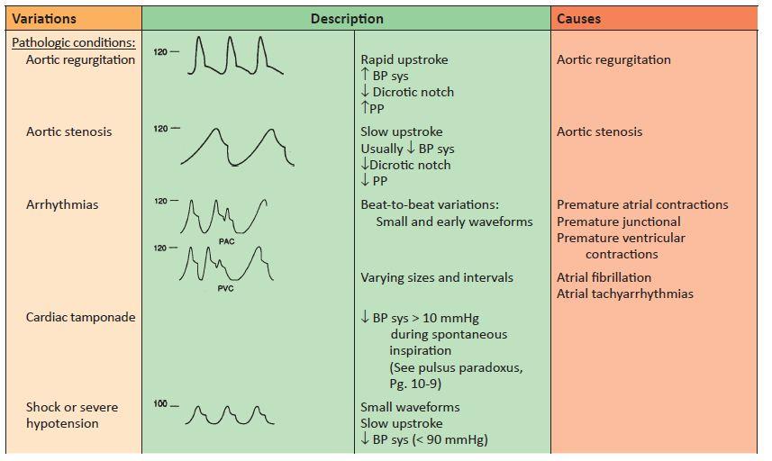 Estás presión arterial sistólica lo mejor que puedes Tres signos de fracaso