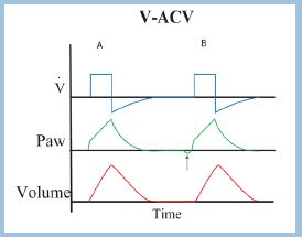 v acv volume assist control ventilation